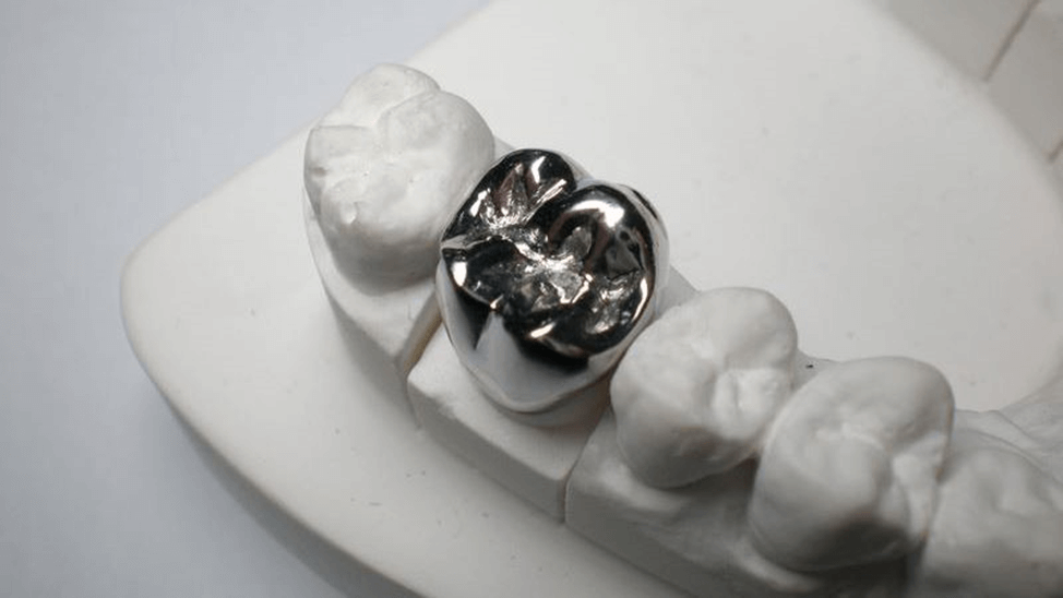 Silver crown tooth